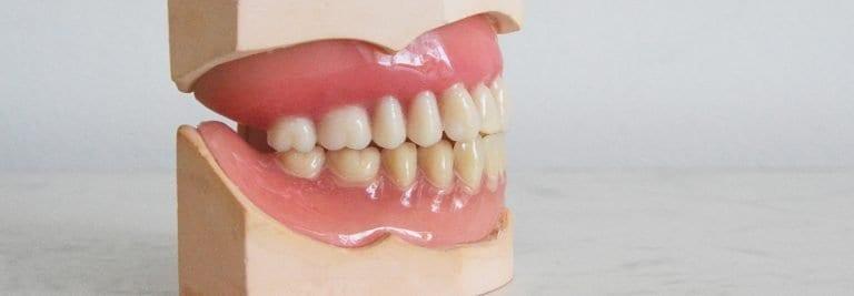Dentures - Revitalise Dental Centre