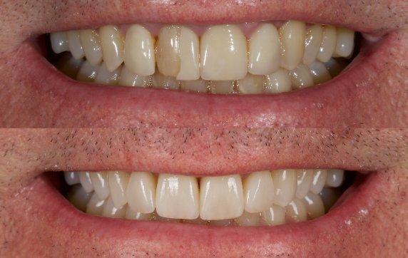 veneers - Revitalise Dental Centre