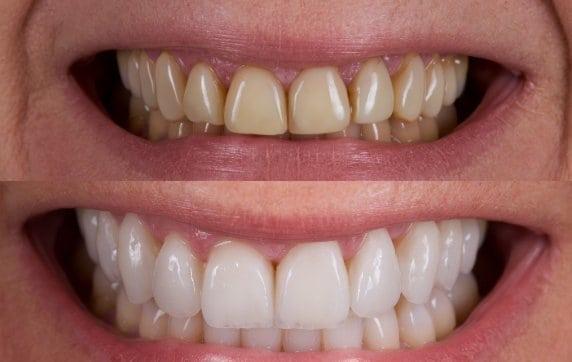 Before vs After Veneers - Revitalise Dental Centre