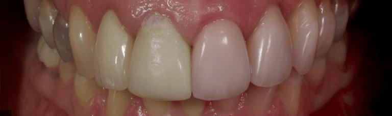 Dental Crowns Before and After - Revitalise Dental Centre