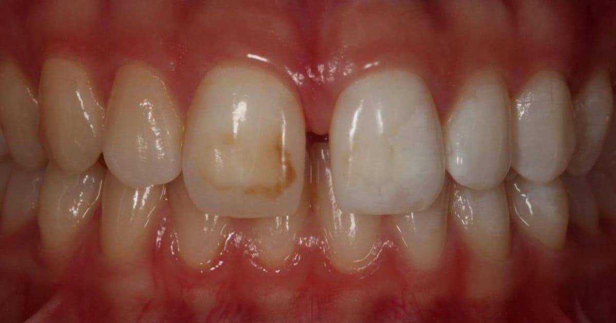 Professional Teeth Whitening - Revitalise Dental Centre