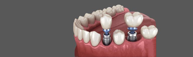 How Long Do Dental Implants Last? - Revitalise Dental Centre