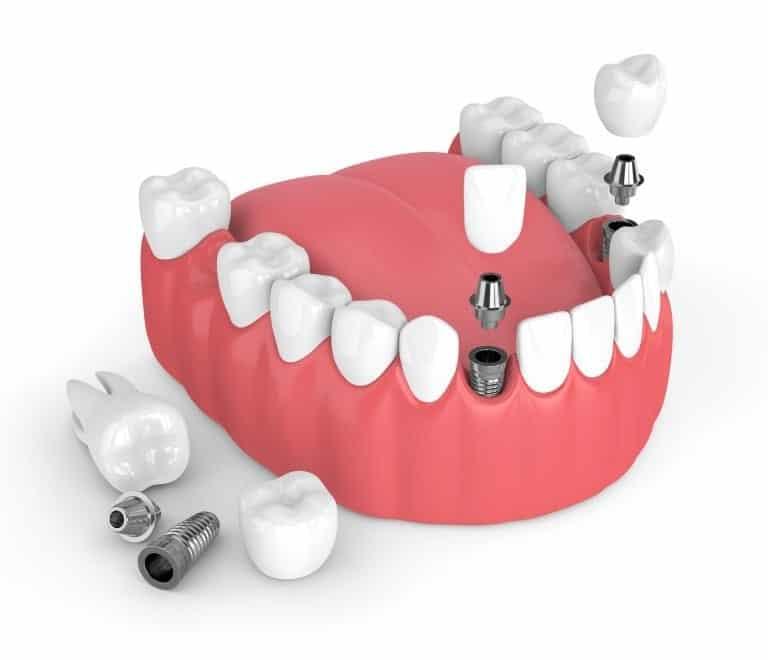 Will Dental Implants Hurt? - Revitalise Dental Centre